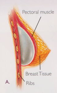 Breast Augmentation diagram