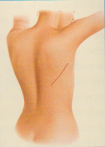 Breast Reconstruction back incision diagram