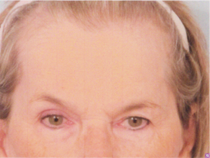 Endoscopic forehead lift panama city fl plastic surgery center dr patrick kelley
