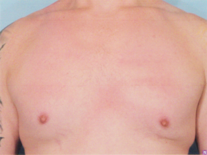 Gynecomastia enlarged male breast correction