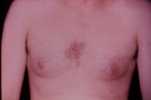 Gynecomastia correction of enlarged male breasts plastic surgery