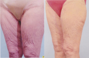 Inner thigh lift dr patrick kelley plastic surgery body contouring
