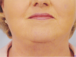 Neck Lift facial plastic surgery dr patrick kelley
