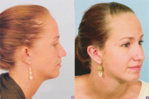 otoplasty ear surgery facial surgery plastic surgery