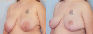 Breast Lift dr patrick kelley breast surgery reconstructive surgery