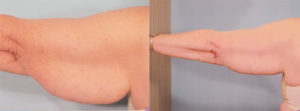 Arm lift plastic surgery dr patrick kelley panama city florida