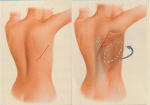 breast reconstruction reconstructive surgery plastic and facial surgery center patrick kelley