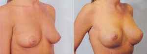 breast enlargement plastic surgery boob job patrick kelley