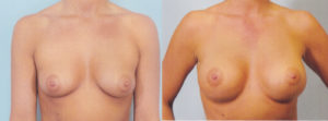 breast enlargement patrick kelley plastic surgery center