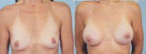 breast enlargement patrick kelley plastic surgeon panama city florida
