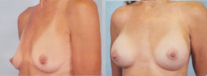 breast enlargement dr patrick kelley plastic surgery center boob job