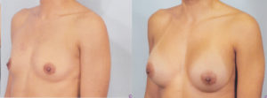 breast enlargement boob job plastic surgery center patrick kelley best plastic surgeon