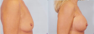 Breast Enlargement boob job dr patrick kelley