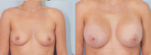 breast enlargement dr kelley plastic surgery