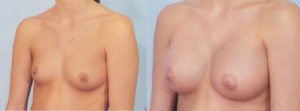 breast enlargement dr patrick kelley plastic surgery center