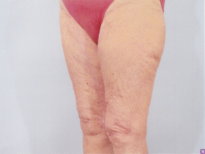 inner thigh lift body contouring plastic surgery