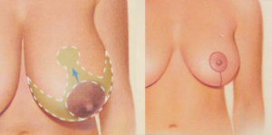 breast lift diagram dr patrick kelley panama city florida