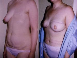 Breast Reconstruction Dr Kelley best surgeon in panama city