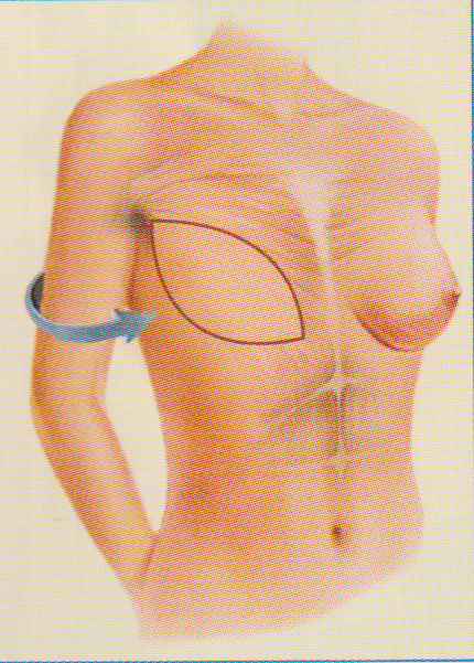 Breast reconstruction back flap plastic surgery