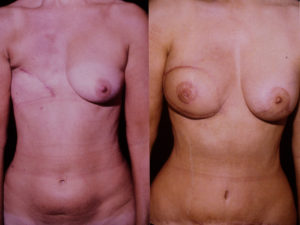 Breast Reconstruction Dr Kelley best plastic surgeon in panama city