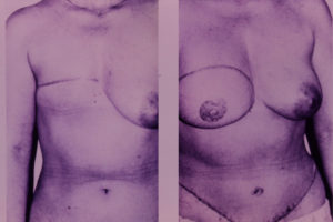 Breast Reconstruction body contouring plastic surgery
