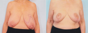 Breast Reduction Dr Kelley best plastic surgeon in panama city florida