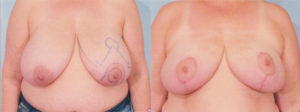 breast reduction plastic surgery Dr patrick kelley