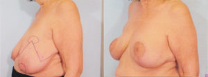 Breast Reduction Dr Kelley best plastic surgery in panama city