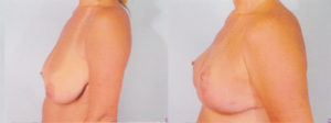 breast reduction dr patrick kelley best surgeon for breast reduction breast reduction insurance coverage
