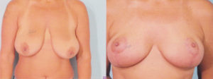 panama city florida best plastic surgery breast reduction