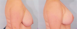 Plastic Surgery Breast Reduction Dr Kelley