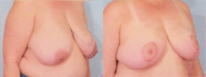 Dr Patrick kelley best plastic surgeon in panama city Breast Reduction