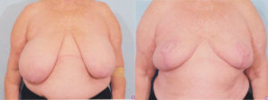 Breast Reduction plastic surgery dr patrick kelley panama city