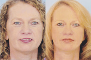 Dr patrick kelley plasticc surgery face lift panama city florida
