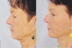 dr patrick kelley best plastic surgeon in bay county face lift panama city