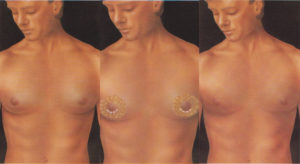 Gynecomastia enlarged male breasts plastic surgery body contouring