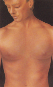 Gynecomastia enlarged male breast plastic surgery body contouring