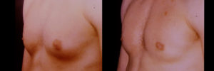 gynecomastia correction of male breast enlargement