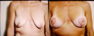 Breast Lift plastic surgery dr patrick kelley