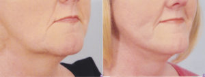 dr patrick kelley plastic surgery center neck lift facial surgery